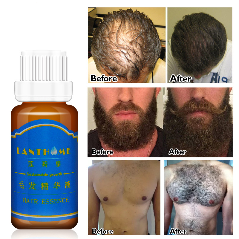 1 Bottle 20ml Men Beard Growth Oil Eyebrow Growth Enhancer Chest Hair Growth Thicker Essence Hair Loss Treatment TSLM2