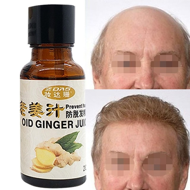 ginger juice for hair loss