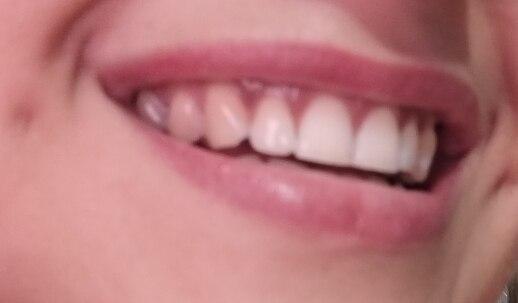 Black Pearl Teeth Whitener