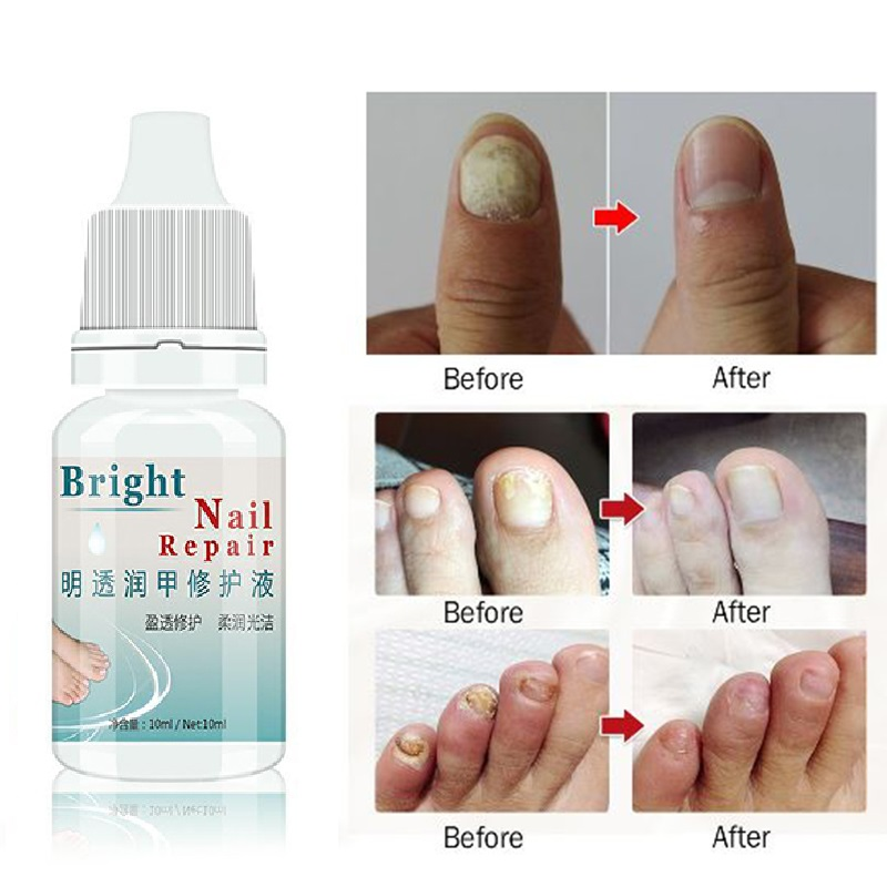 Nail-Gel Essence-Nail Feet-Care Foot-Whitening Onychomycosis Fungal-Nail-Treatment