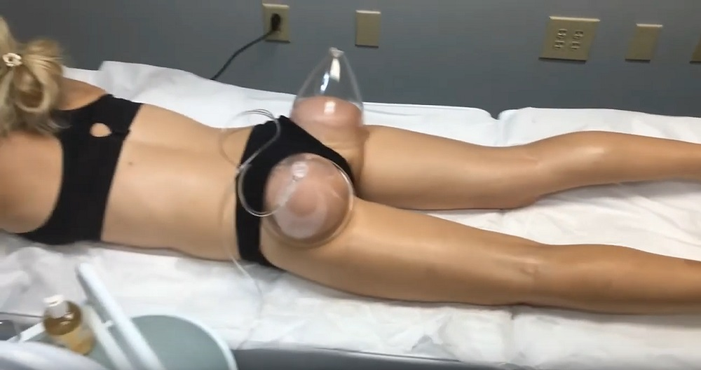 Butt lift