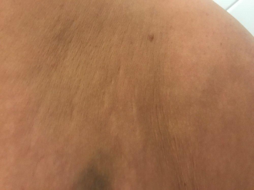 UltraSonic Lift Massager™ photo review