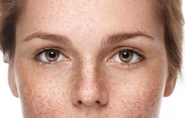 长老年斑的原因 如何减少老年斑的产生-养生法典