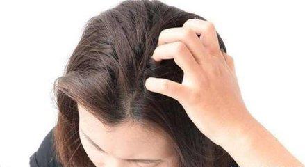 洗完头之后头还是痒的原因是什么-养生法典