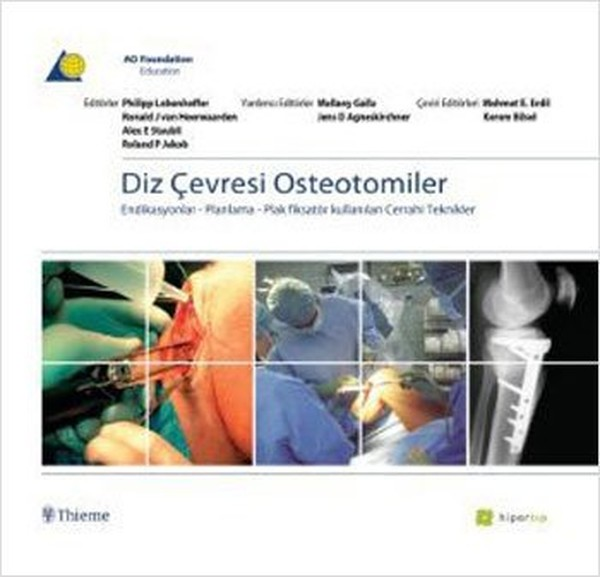 Knee Circumference Osteotomies. Collective. Appropriate Hyperlink