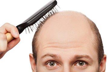 固发生发的方法 吃什么可以达到固发生发的效果-养生法典