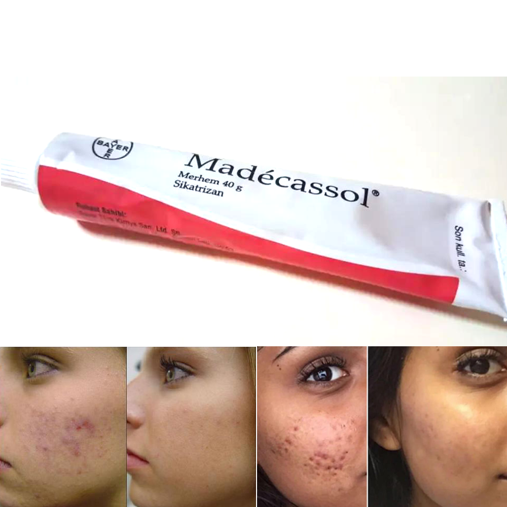 Madecassol 40 G Cream Magical Effect Sikatrizan Balm Centella Asiatica Mobile Regenerator Acne Acne Injury Wound Skin Yenilem