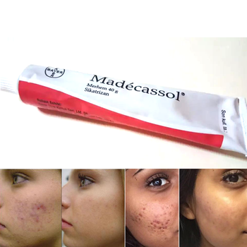 Madecassol 40 G Cream Magical Effect Sikatrizan Balm Centella Asiatica Mobile Regenerator Acne Acne Injury Wound Skin Yenilem