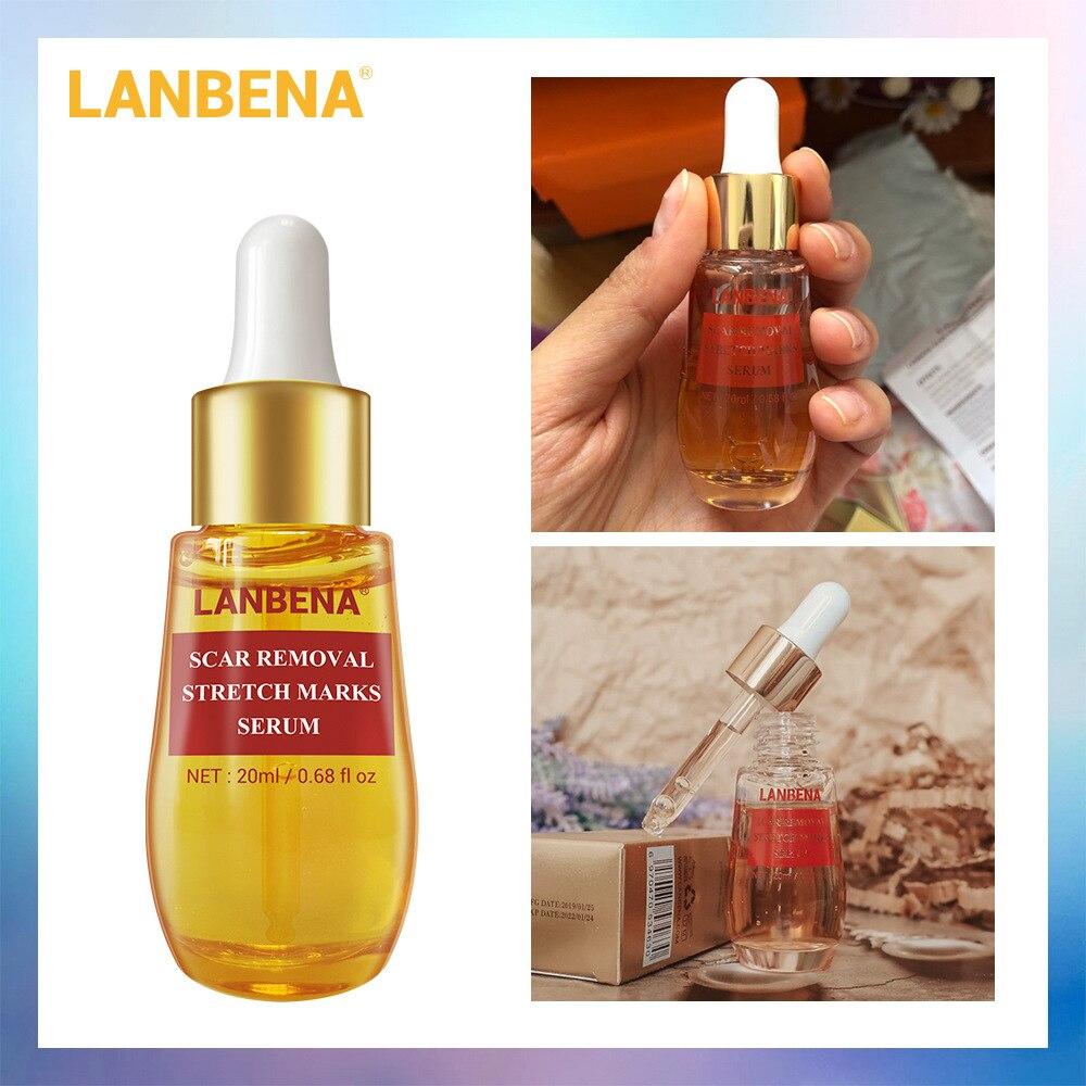 LANBENA Acne Scar Remove Serum Acne Treatment Remover Stretch Marks Anti Acne Shrink Pores Blackhead Whitening Cream Skin Care