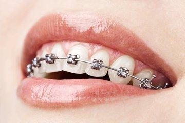 小孩子从几岁开始带牙套效果最好-养生法典