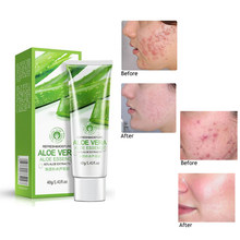 BIOAQUA-Gel hidratante Natural de Aloe Vera para el cuidado de la piel, Crema Anti Arrugas, cicatriz de acné, blanqueamiento, protección solar, tratamiento del acné, TSLM2
