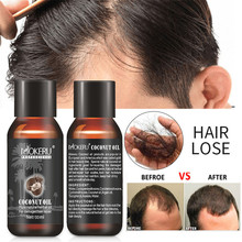 Hair Growth Essential 30ml Hair Loss Products Hair Care Essence for Women