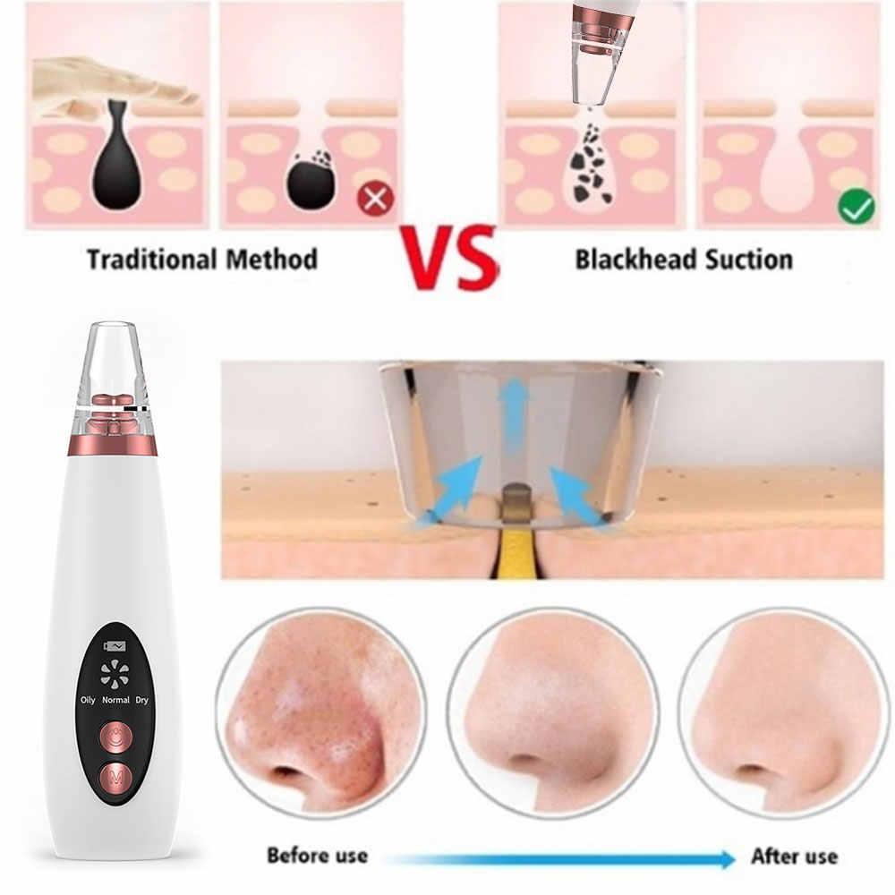 Nettoyeur de pores d'acné dissolvant de points noirs aspirateur électrique nez visage nettoyage en profondeur Machine de soins de la peau beauté bouton supprimer livraison directe
