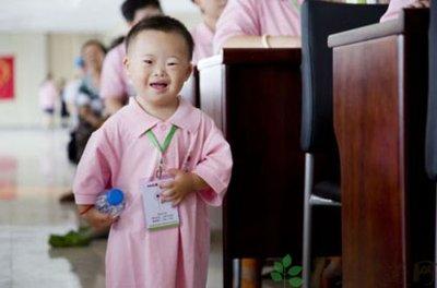 小孩患有唐氏综合症会有哪些明显症状-养生法典