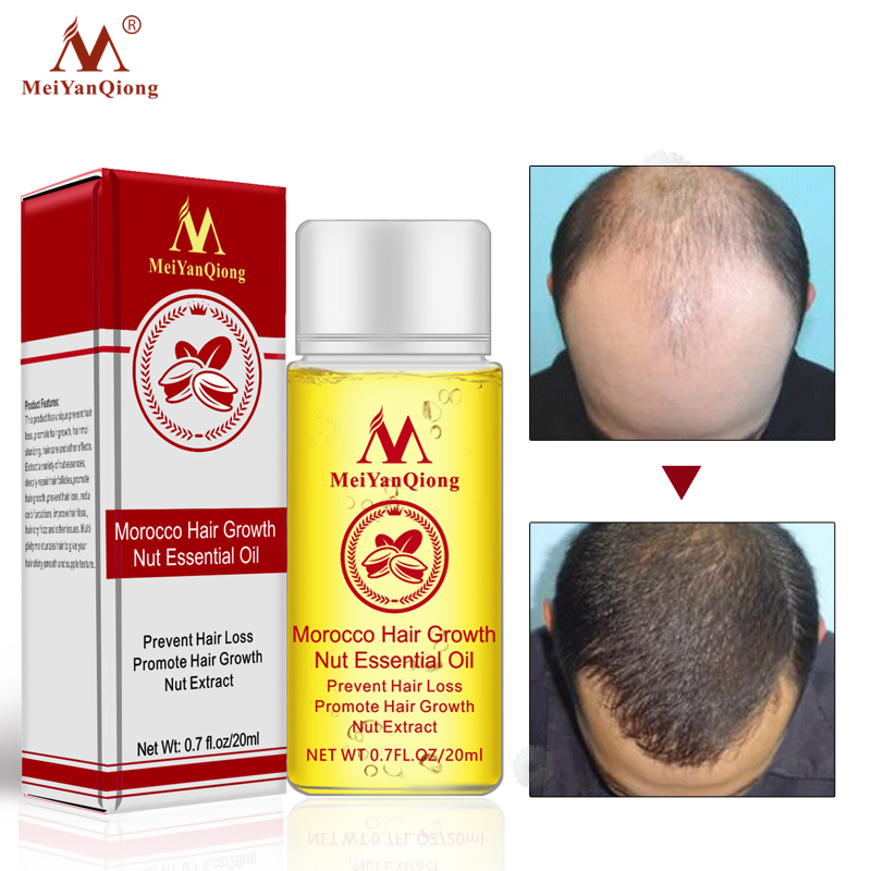Fast Hair Growth Essence Hair Loss Products Essential Oil Liquid Treatment Preventing Hair Loss Hair Care Products 20ml