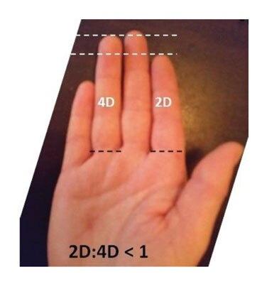 2D:4D指长比所造成的杏倾向研究