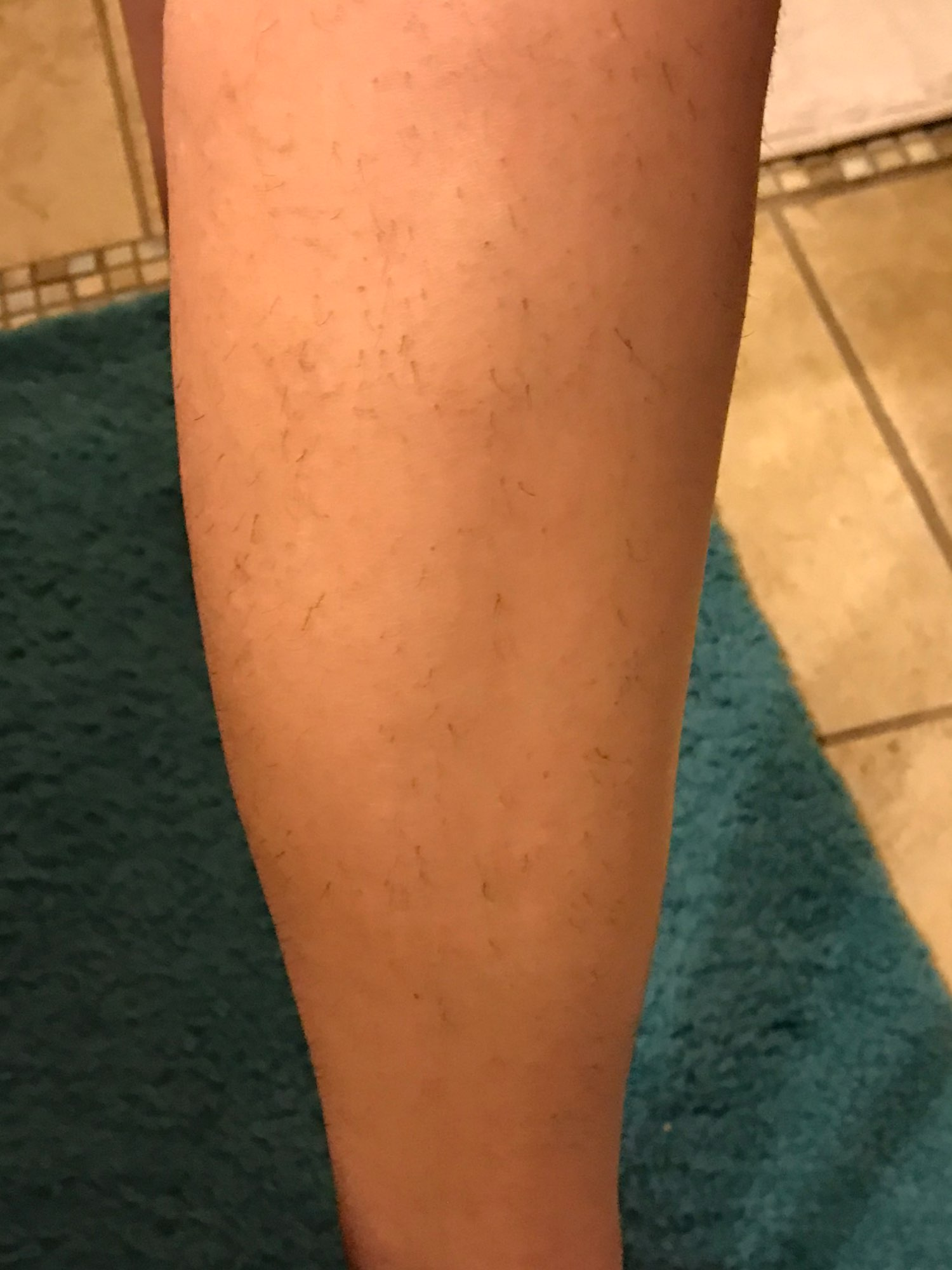 at home laser hair removal before and after KetchBeauty IPL Laser