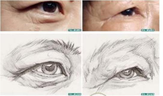 现在不进行注意保护眼睛到了老年视力就会变得模糊-养生法典
